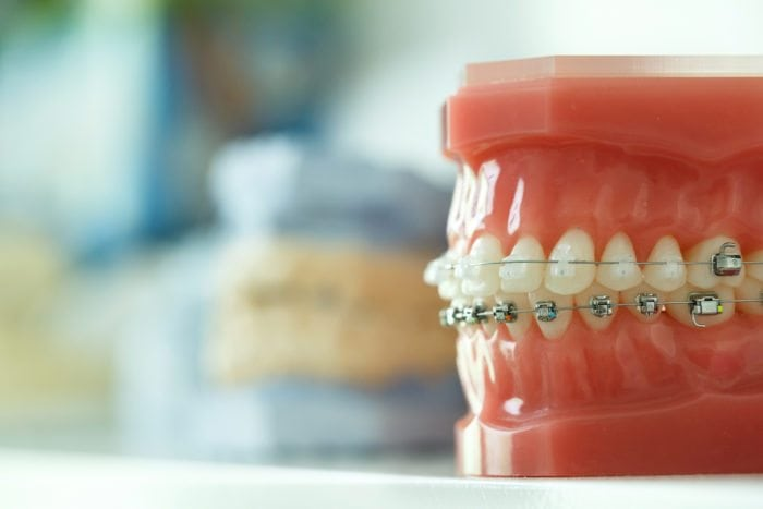 Orthodontists SEO Sydney
